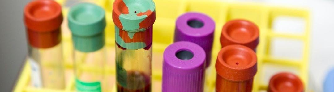 Biogen Inc (NSQ:BIIB) cover image